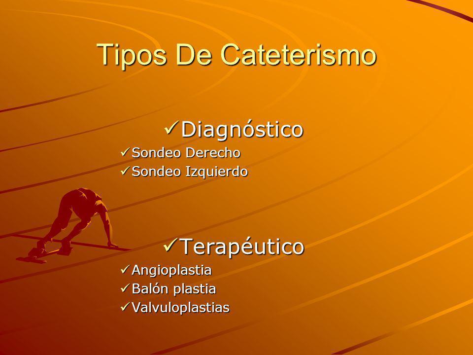 Tipos De Cateterismo Diagnóstico Terapéutico Sondeo Derecho