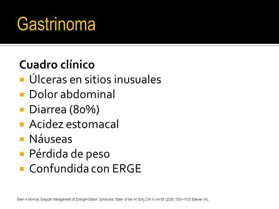 Gastrinoma Cuadro clínico Úlceras en sitios inusuales Dolor abdominal