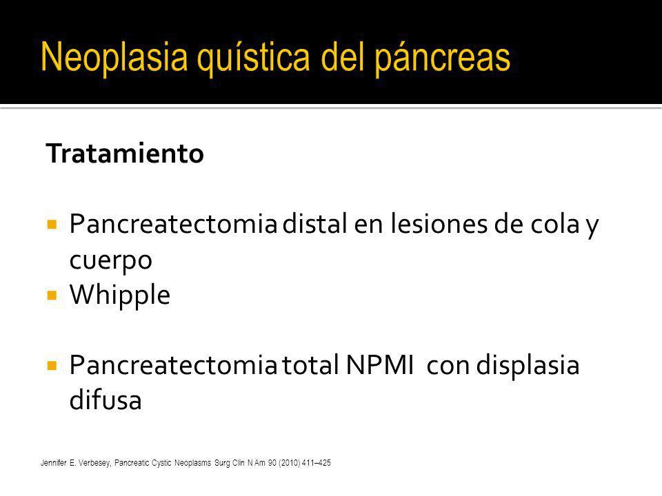 Neoplasia quística del páncreas