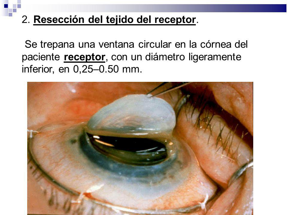 2. Resección del tejido del receptor.