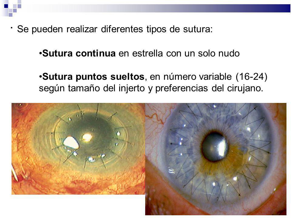 · Se pueden realizar diferentes tipos de sutura: