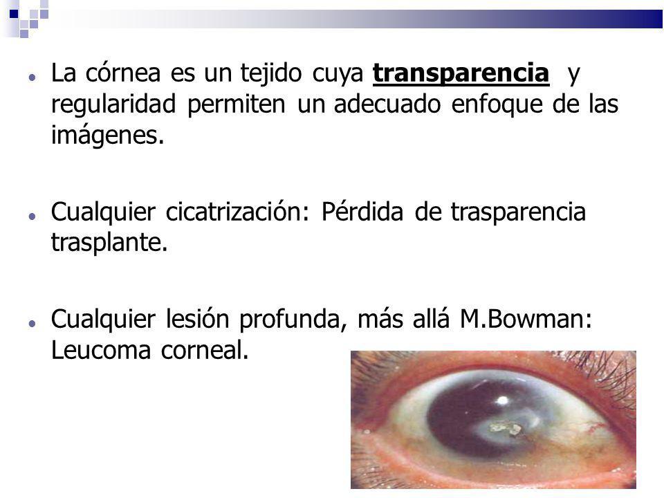 Cualquier cicatrización: Pérdida de trasparencia trasplante.