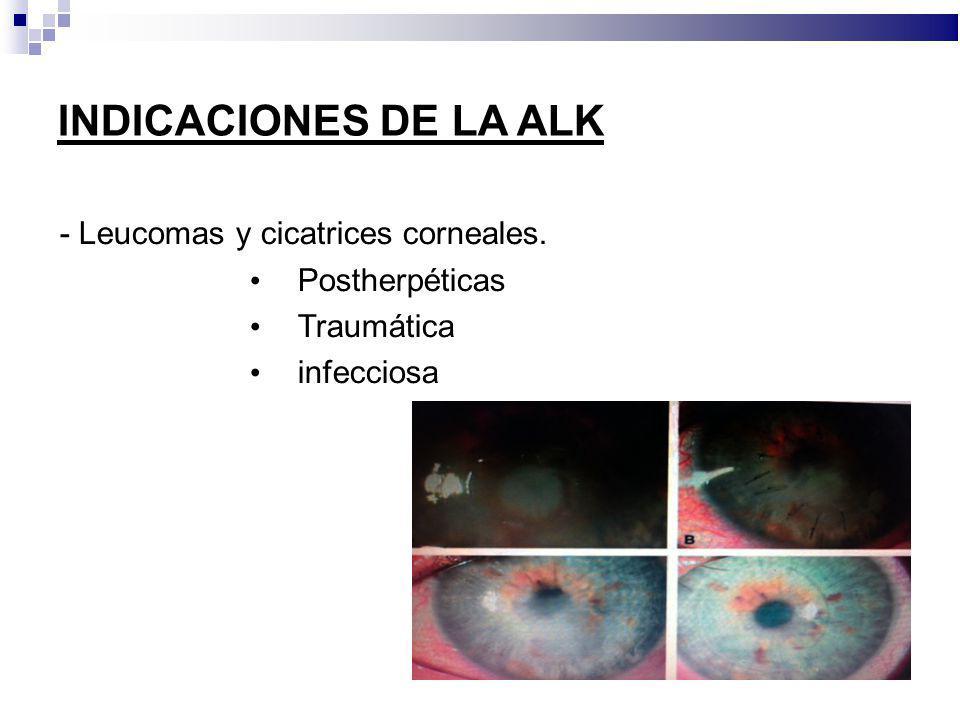 INDICACIONES DE LA ALK - Leucomas y cicatrices corneales.