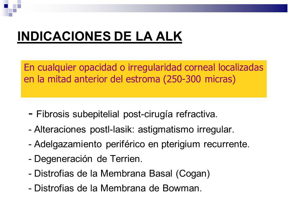 - Fibrosis subepitelial post-cirugía refractiva.