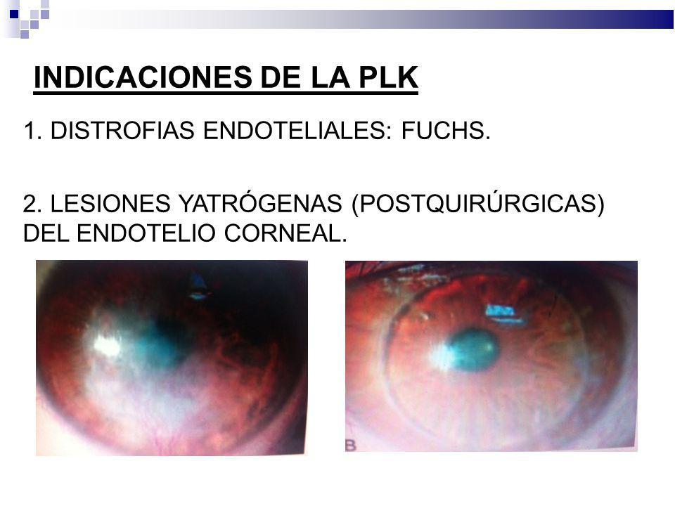 INDICACIONES DE LA PLK 1. DISTROFIAS ENDOTELIALES: FUCHS.