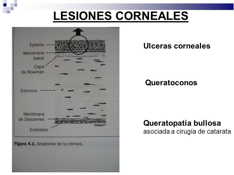 LESIONES CORNEALES Ulceras corneales Queratoconos
