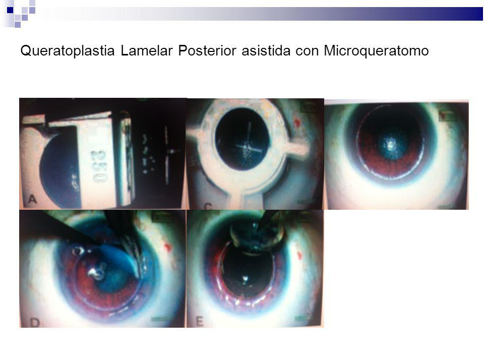 Queratoplastia Lamelar Posterior asistida con Microqueratomo