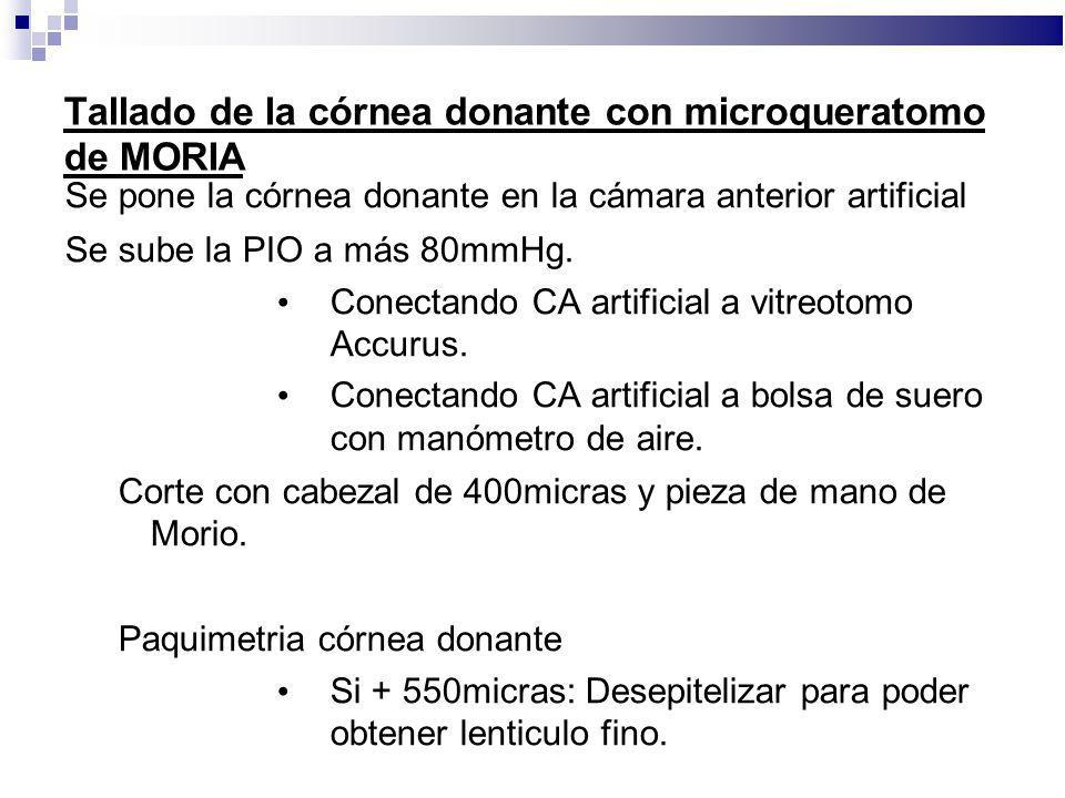 Tallado de la córnea donante con microqueratomo de MORIA