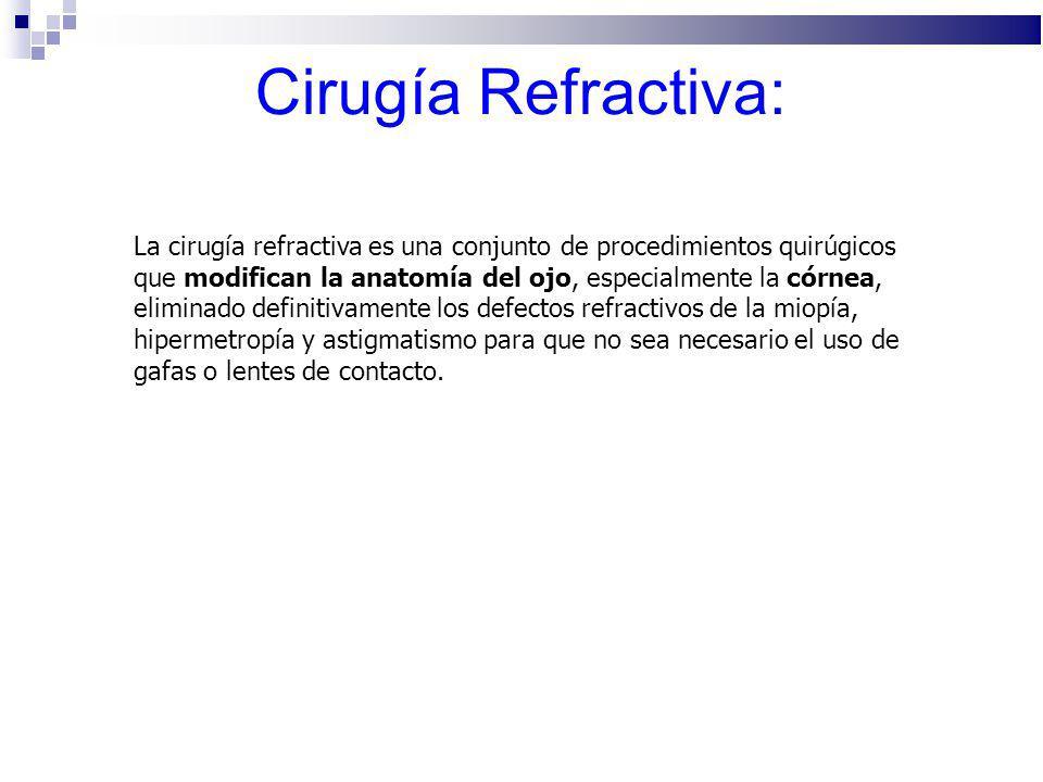 Cirugía Refractiva:
