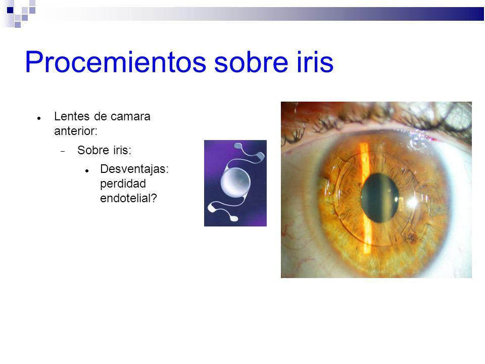 Procemientos sobre iris