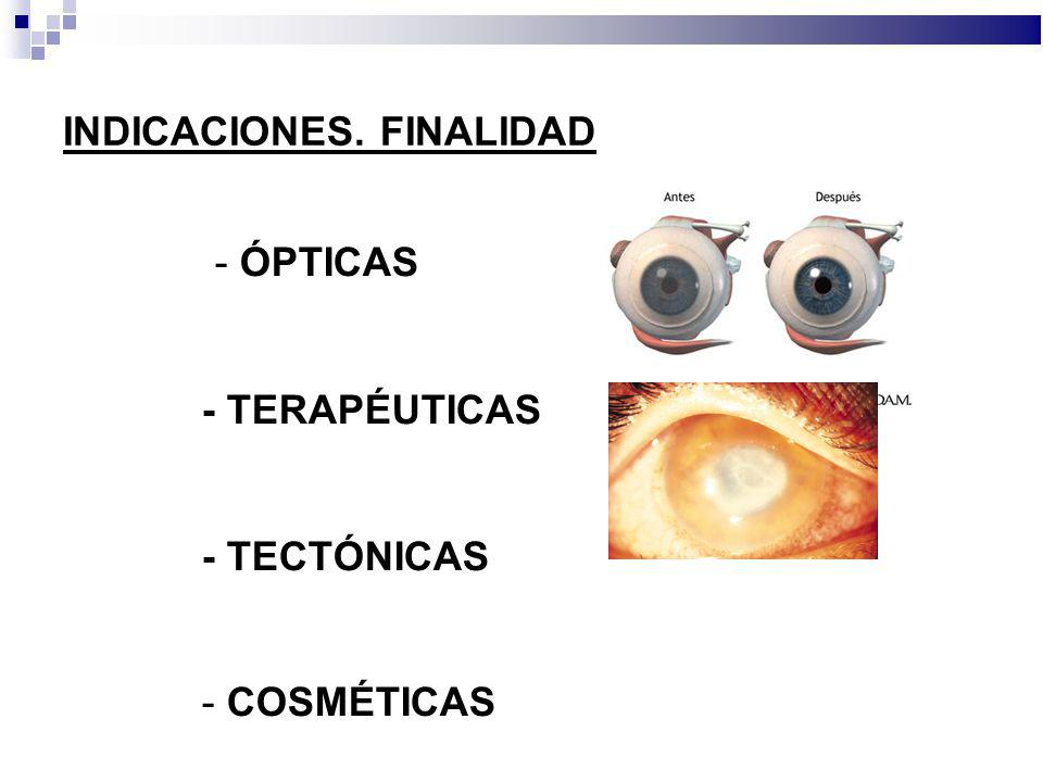 - ÓPTICAS INDICACIONES. FINALIDAD - TERAPÉUTICAS - TECTÓNICAS