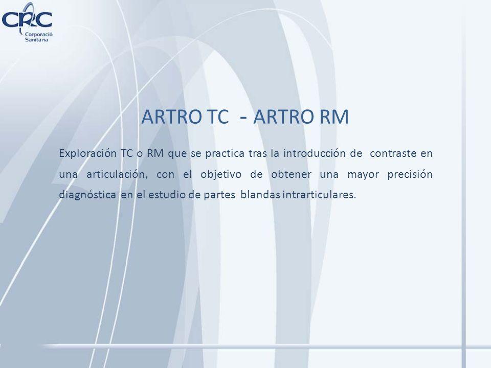 ARTRO TC - ARTRO RM