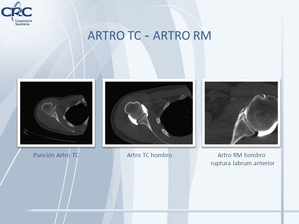 Artro RM hombro ruptura labrum anterior