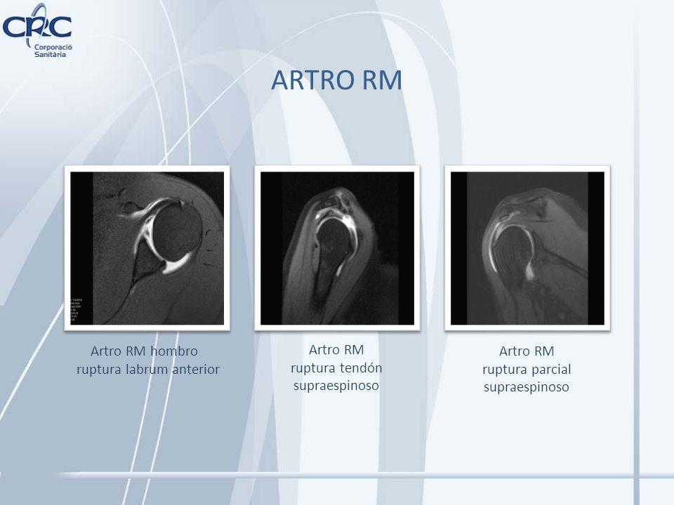 Artro RM ruptura tendón supraespinoso