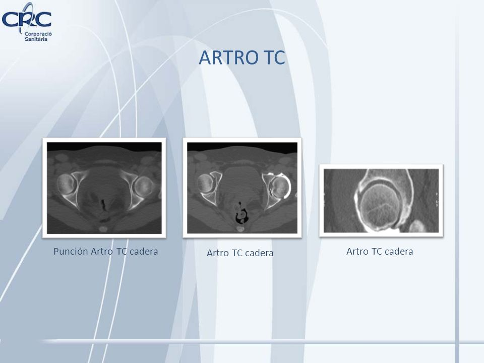Punción Artro TC cadera