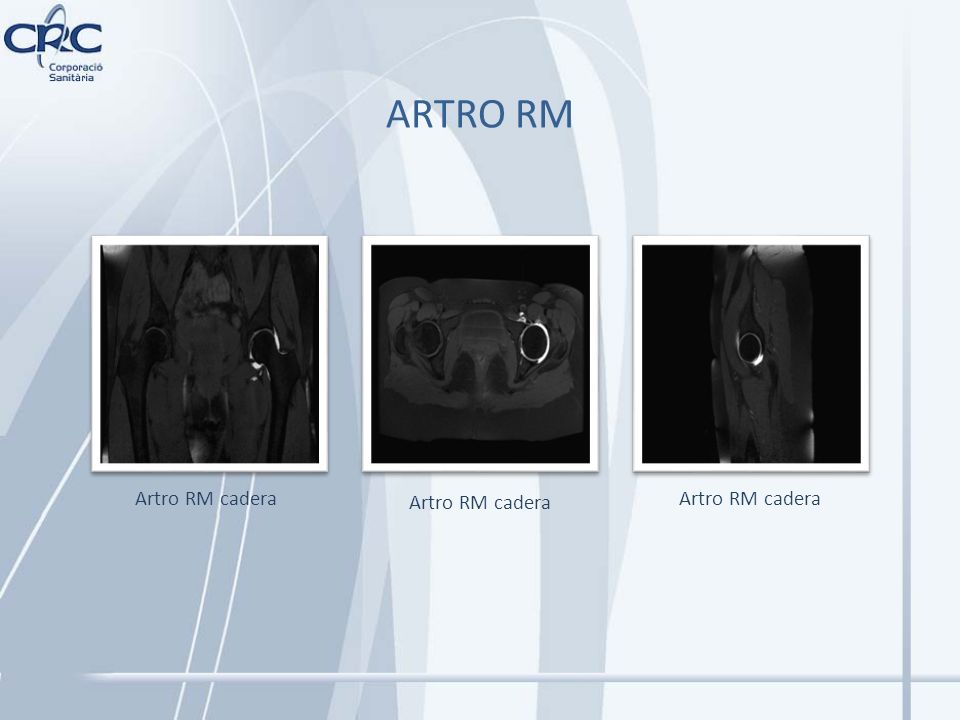 ARTRO RM Artro RM cadera Artro RM cadera Artro RM cadera