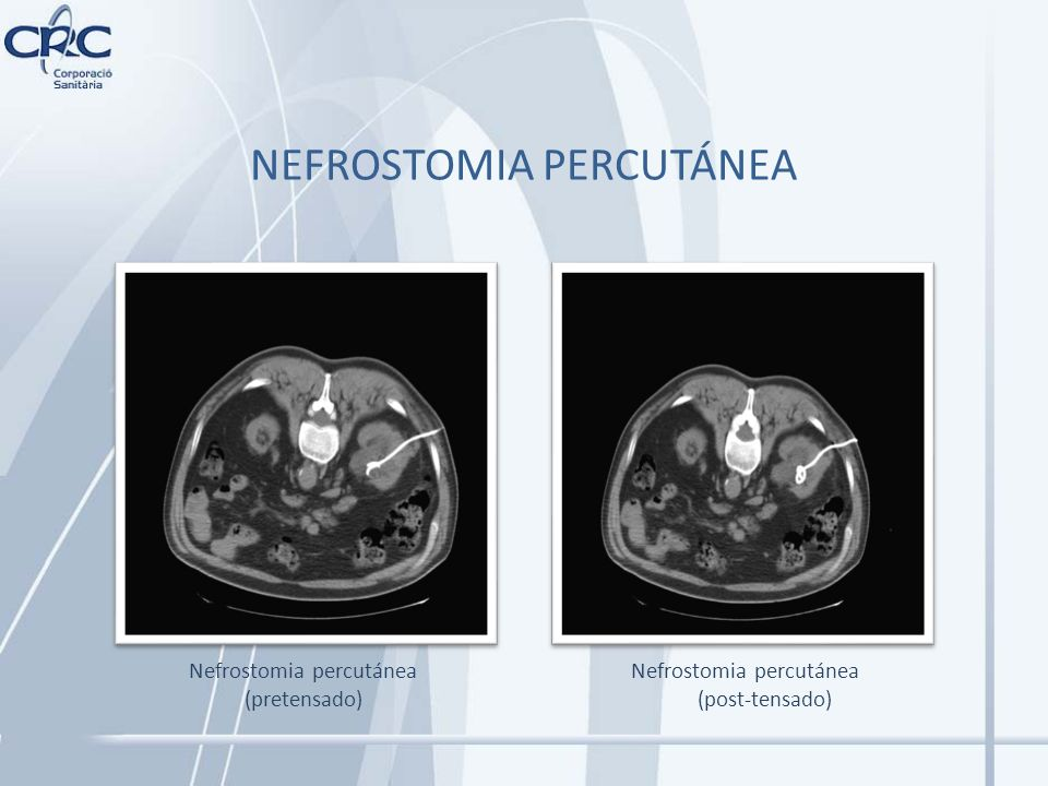 Nefrostomia percutánea (pretensado)