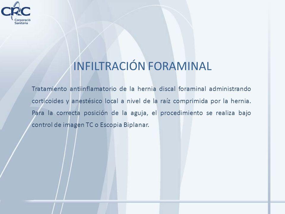 INFILTRACIÓN FORAMINAL