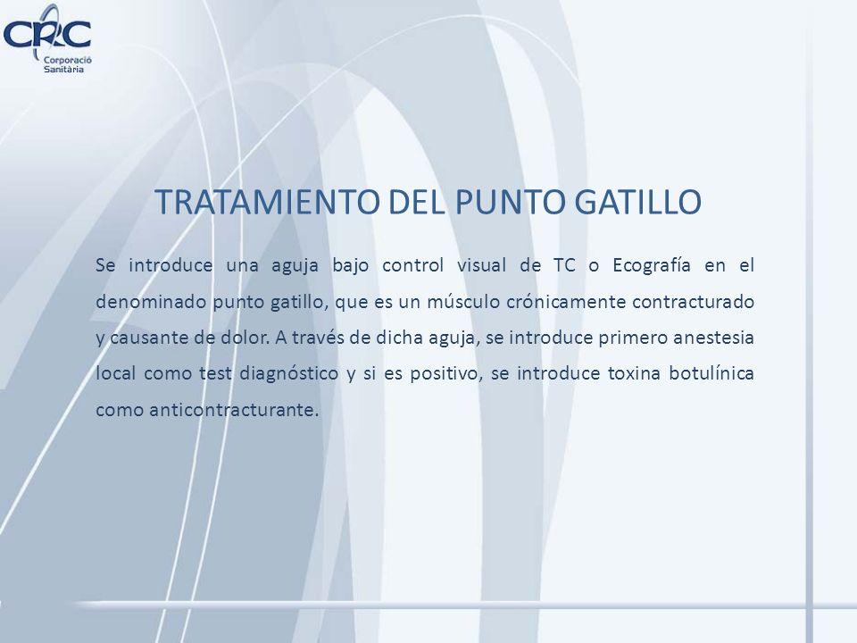TRATAMIENTO DEL PUNTO GATILLO