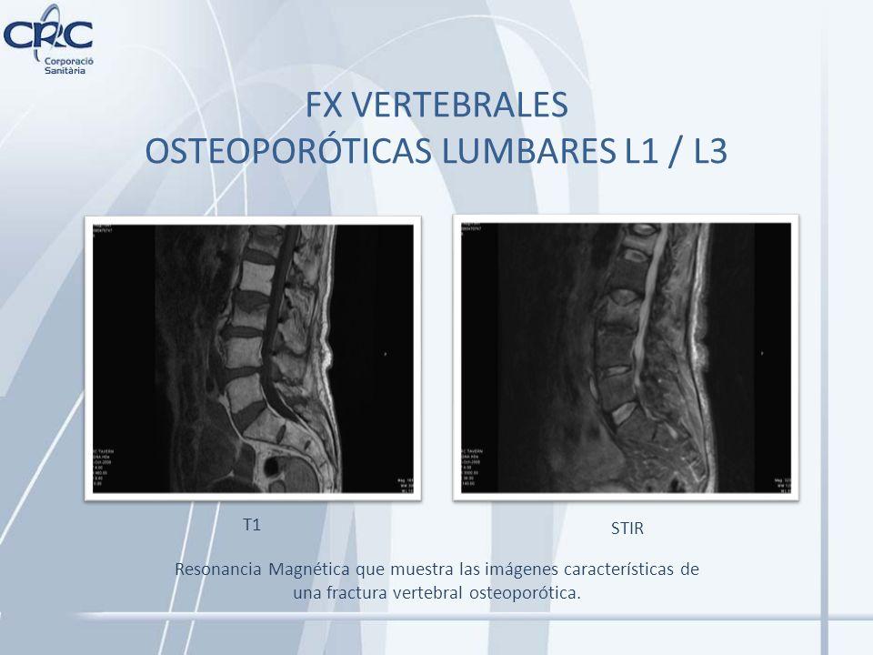 FX VERTEBRALES OSTEOPORÓTICAS LUMBARES L1 / L3