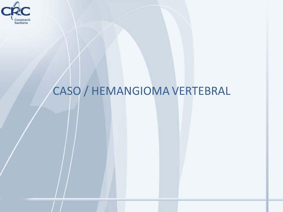 CASO / HEMANGIOMA VERTEBRAL