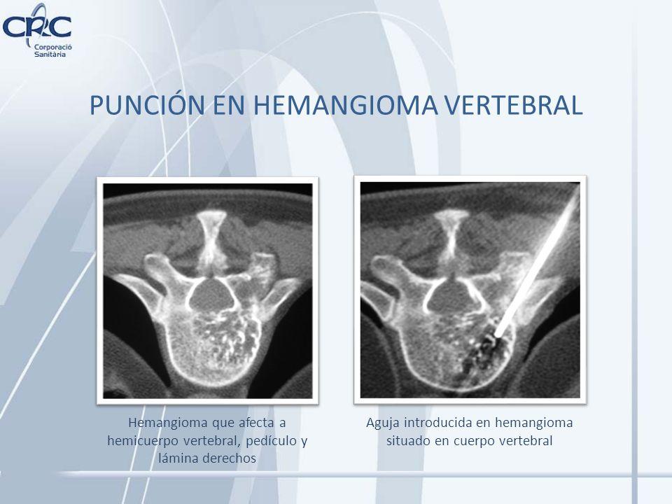 PUNCIÓN EN HEMANGIOMA VERTEBRAL