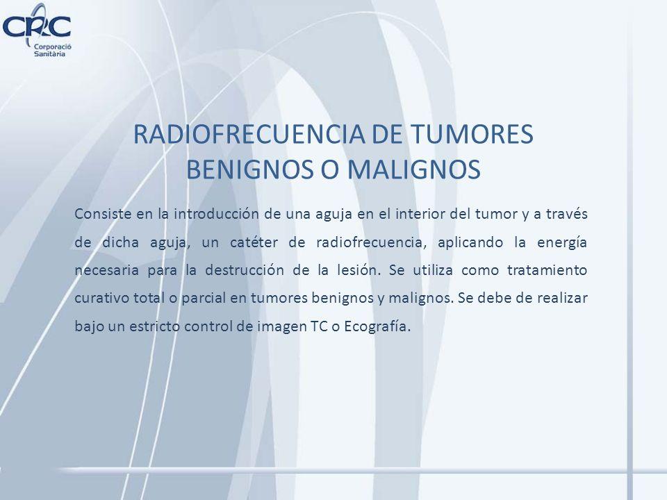 RADIOFRECUENCIA DE TUMORES