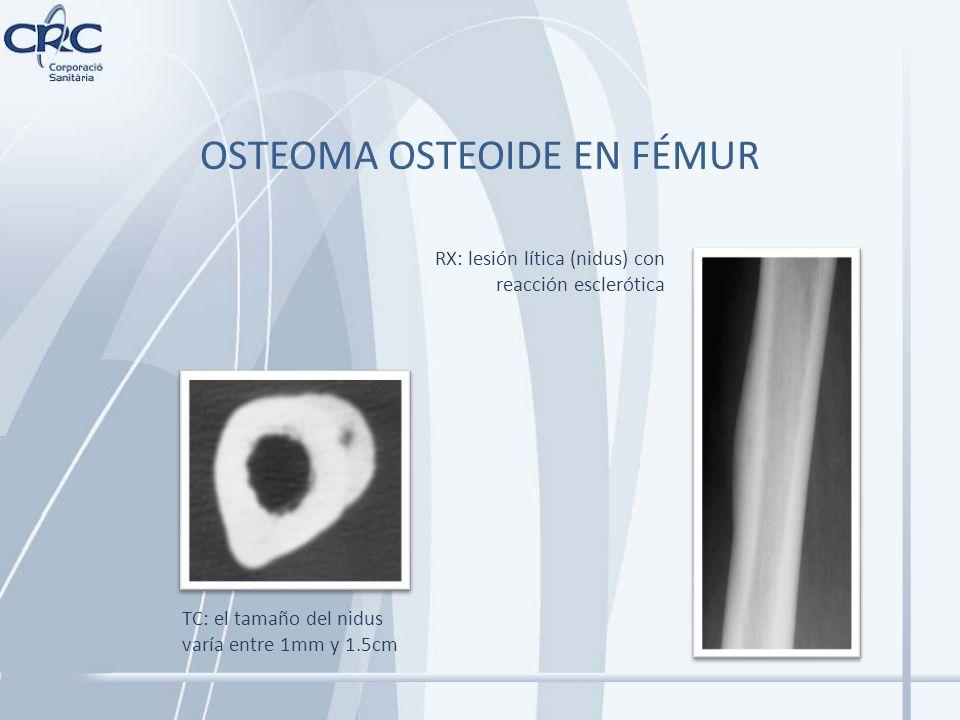 OSTEOMA OSTEOIDE EN FÉMUR