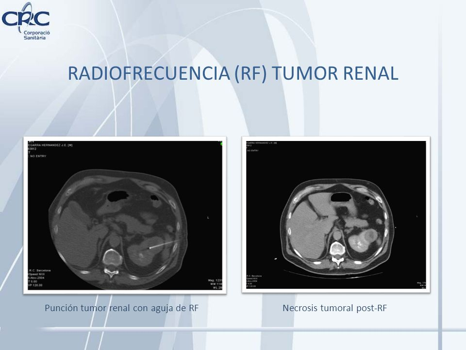 RADIOFRECUENCIA (RF) TUMOR RENAL