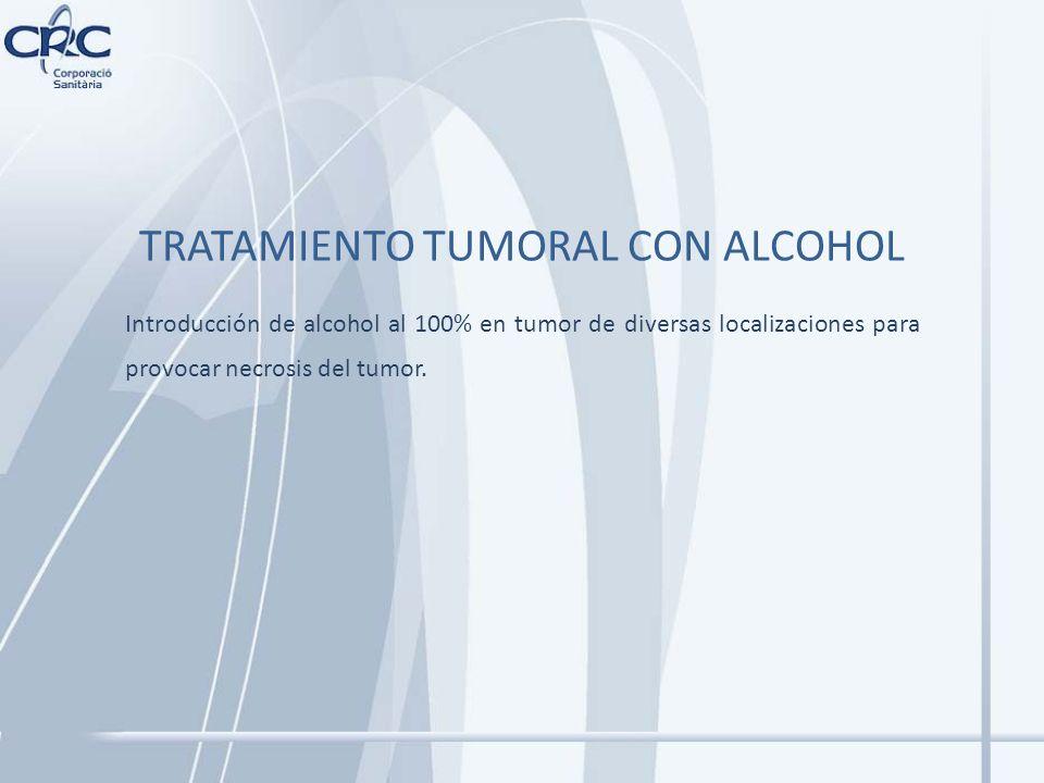TRATAMIENTO TUMORAL CON ALCOHOL