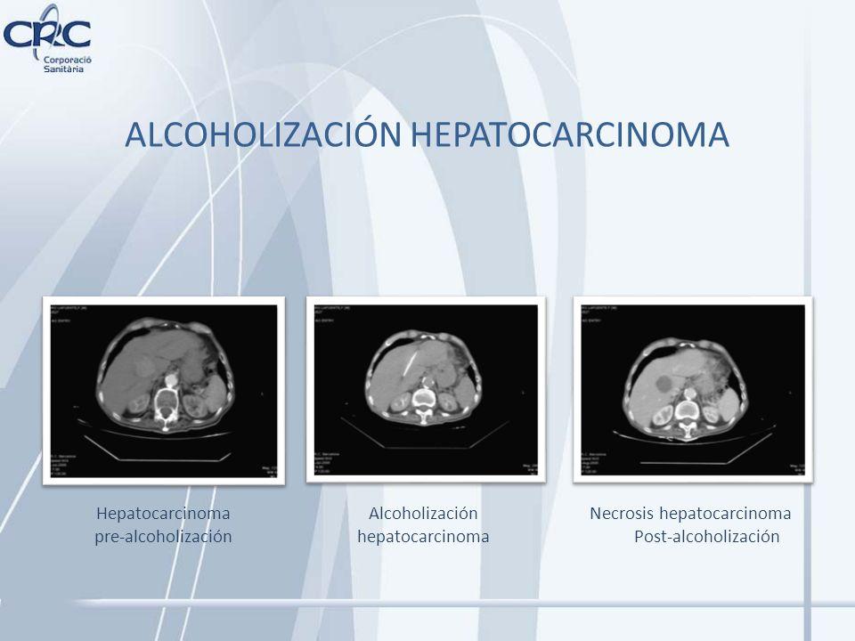 ALCOHOLIZACIÓN HEPATOCARCINOMA