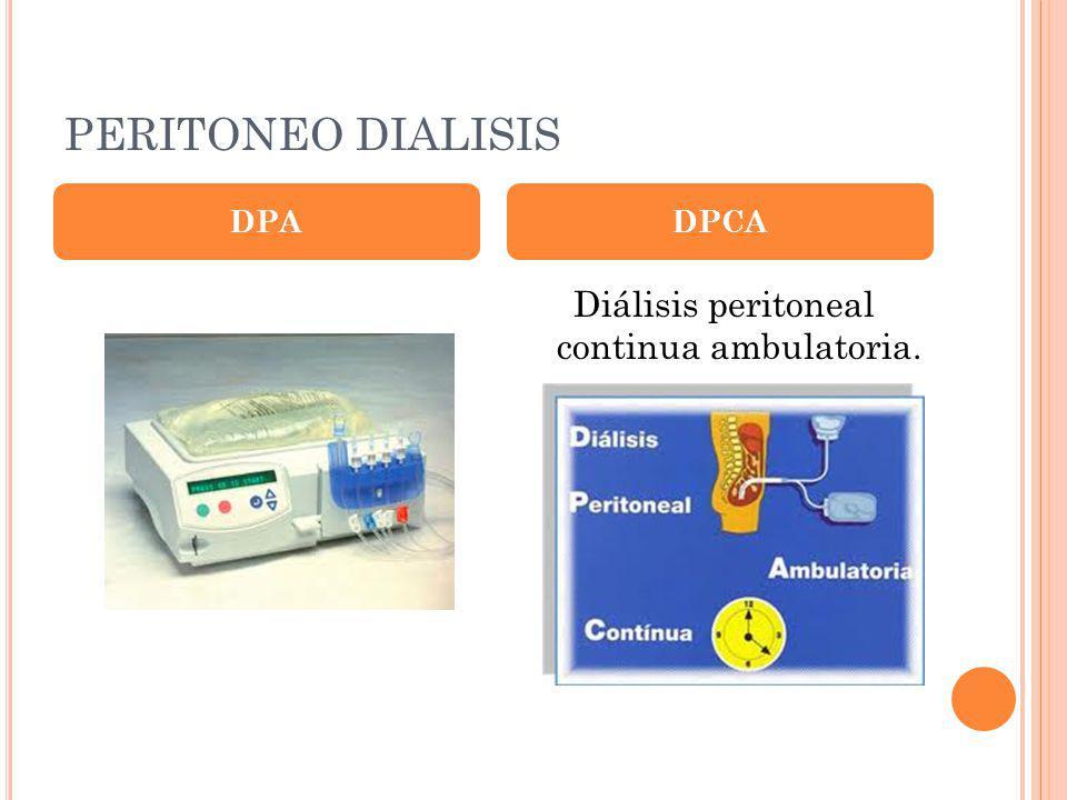 Diálisis peritoneal continua ambulatoria.