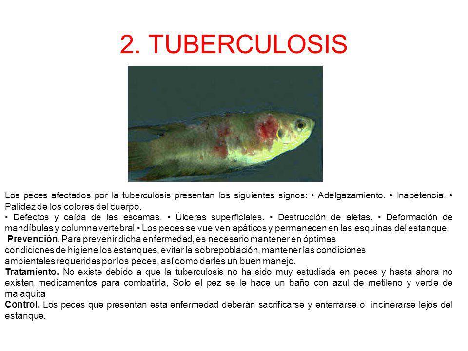 2. TUBERCULOSIS