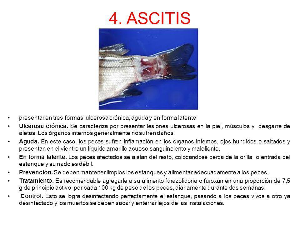 4. ASCITIS presentar en tres formas: ulcerosa crónica, aguda y en forma latente.