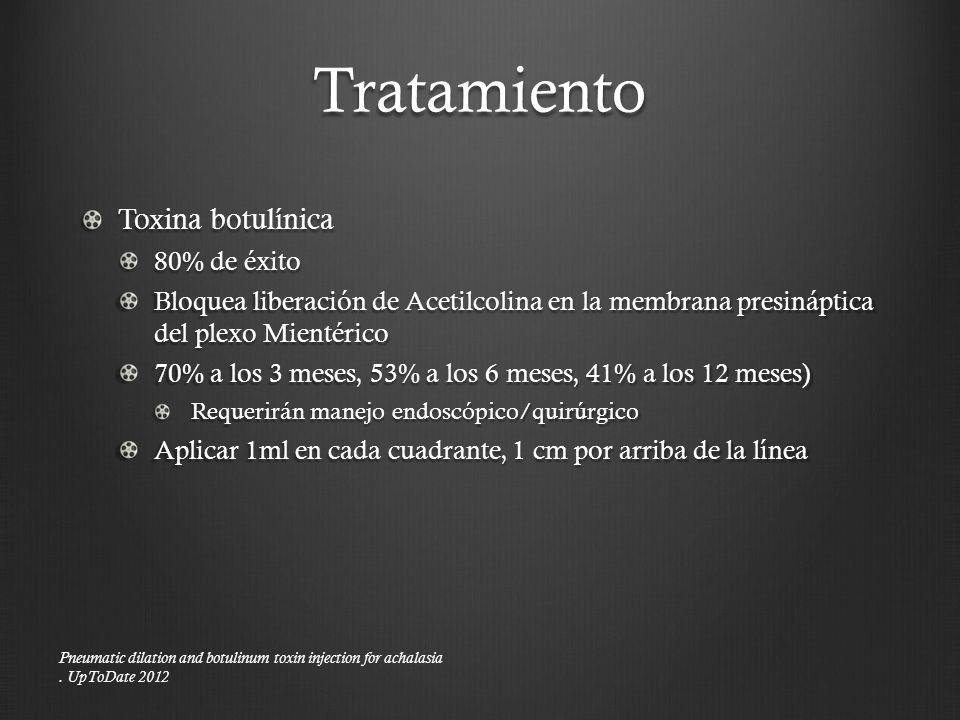 Tratamiento Toxina botulínica 80% de éxito