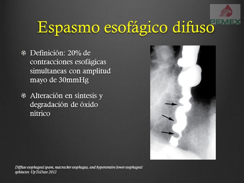 Espasmo esofágico difuso