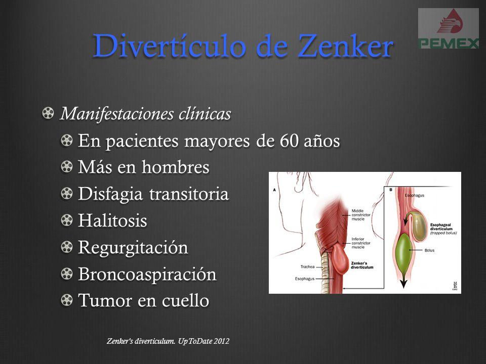 Divertículo de Zenker Manifestaciones clínicas