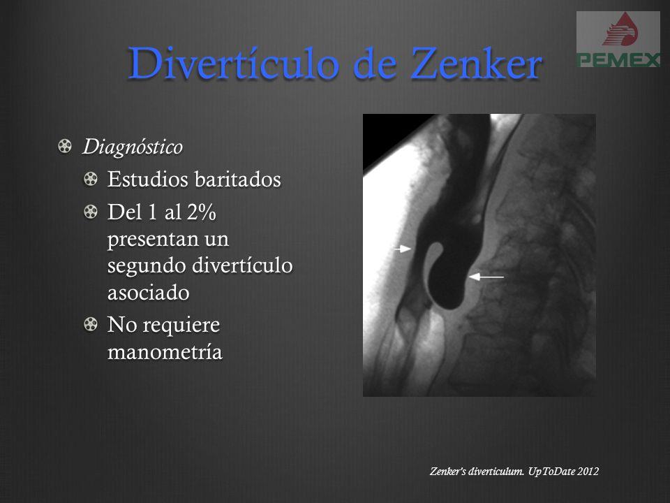 Divertículo de Zenker Diagnóstico Estudios baritados