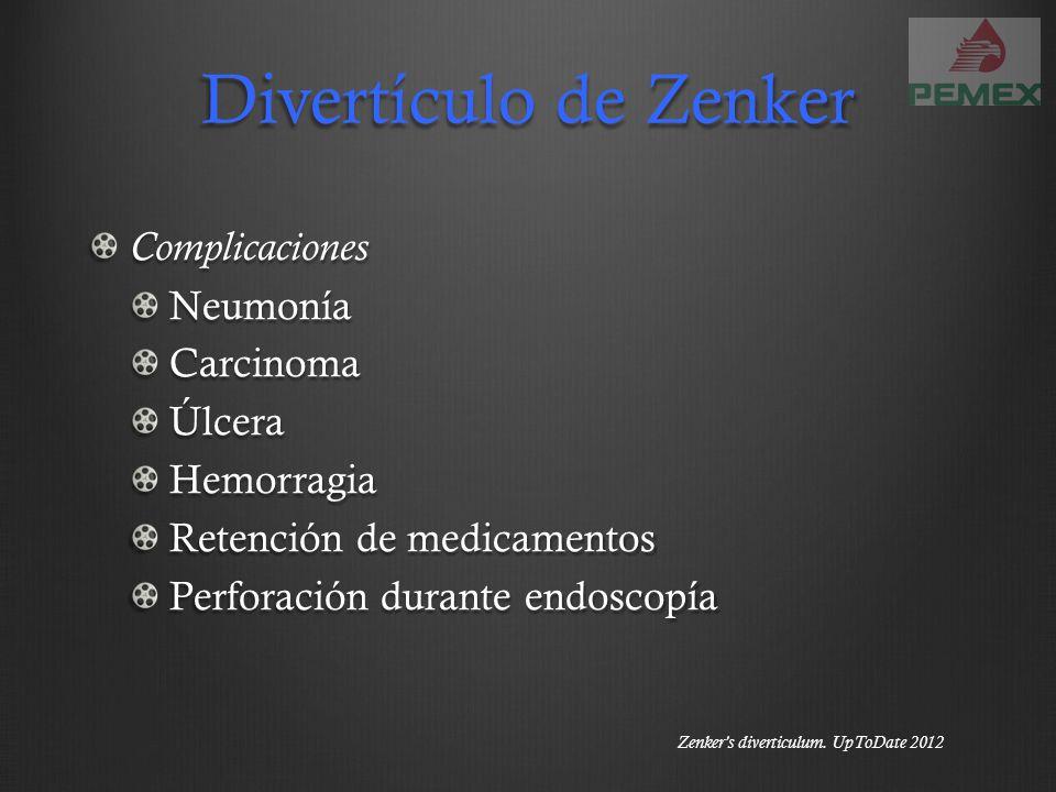 Divertículo de Zenker Complicaciones Neumonía Carcinoma Úlcera