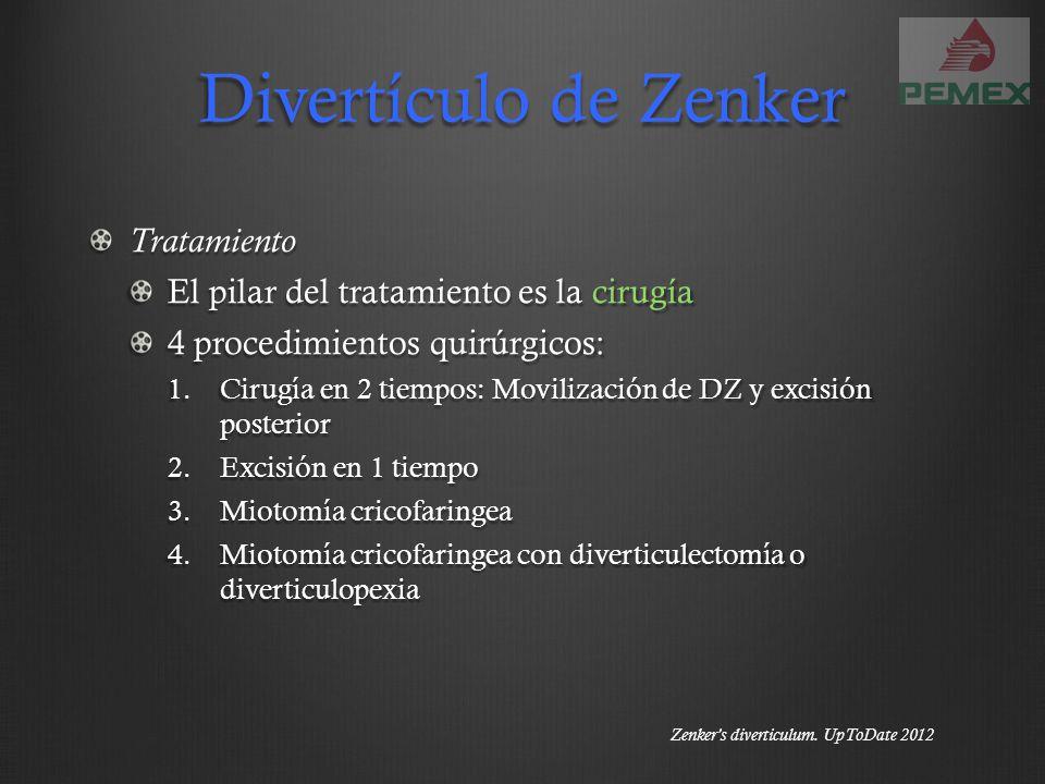 Divertículo de Zenker Tratamiento