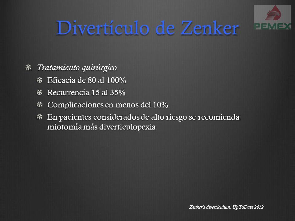 Divertículo de Zenker Tratamiento quirúrgico Eficacia de 80 al 100%