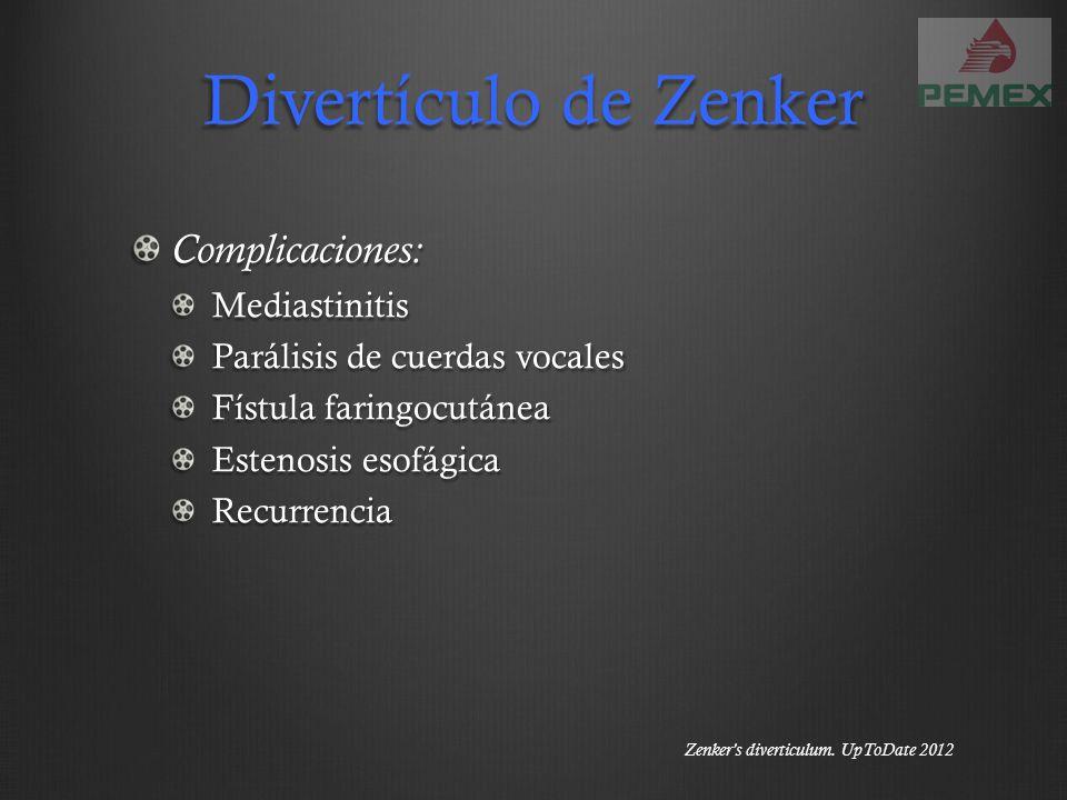 Divertículo de Zenker Complicaciones: Mediastinitis