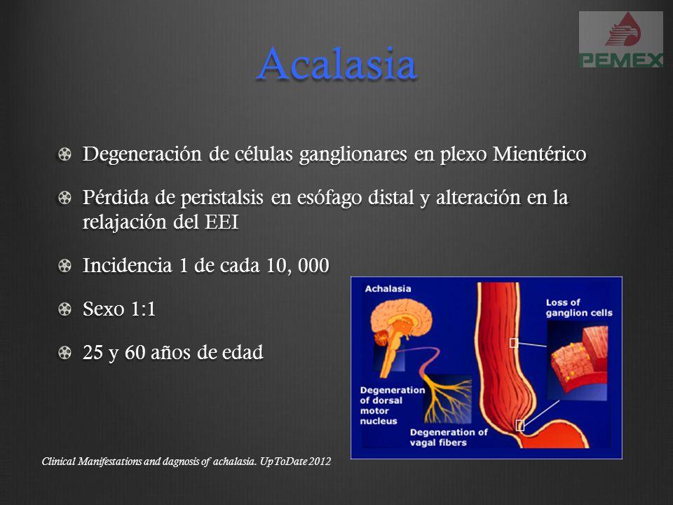 Acalasia Degeneración de células ganglionares en plexo Mientérico