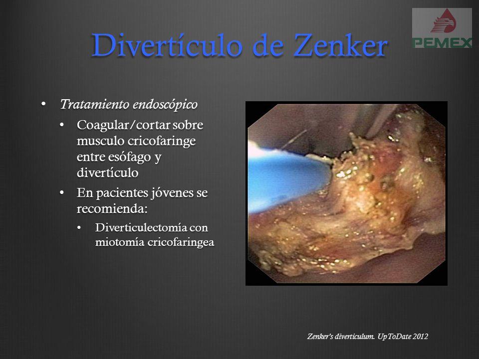 Divertículo de Zenker Tratamiento endoscópico