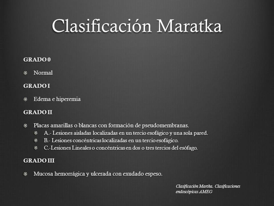 Clasificación Maratka