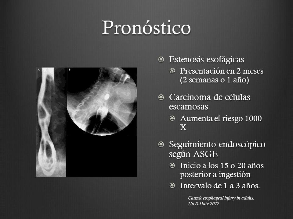 Pronóstico Estenosis esofágicas Carcinoma de células escamosas