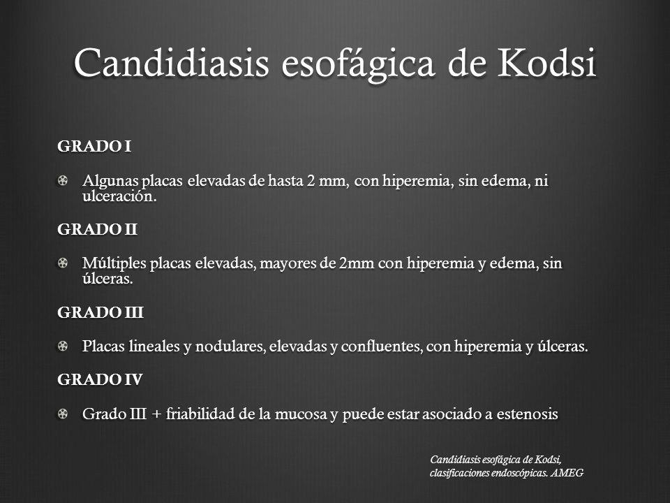 Candidiasis esofágica de Kodsi