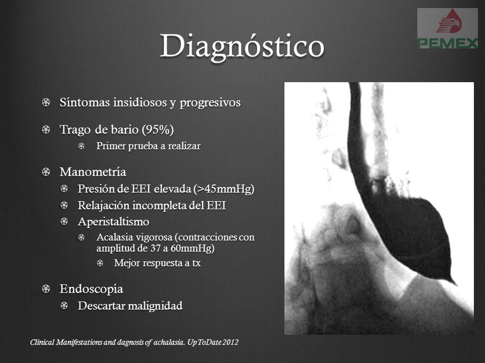 Diagnóstico Síntomas insidiosos y progresivos Trago de bario (95%)