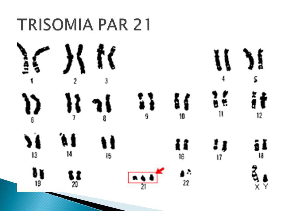 TRISOMIA PAR 21