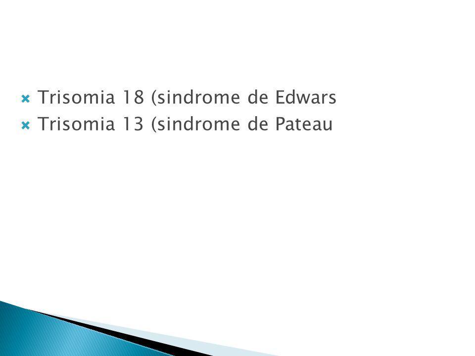 Trisomia 18 (sindrome de Edwars